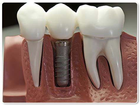 What is a Dental Implant   Dallas Implant dentist